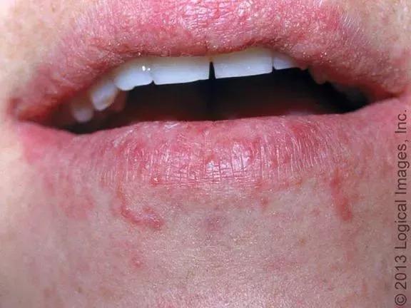 口角 炎 原因